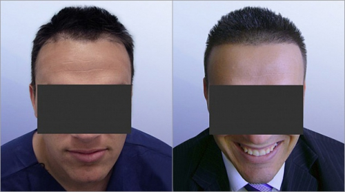 implant_capillaire_avant_apres_resultat_photo
